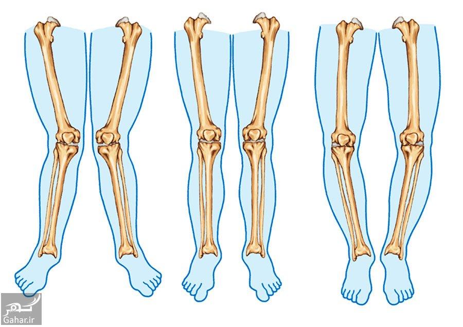 knock knees پای ضربدری چیست؟ + علل و روش پیشگیری و درمان
