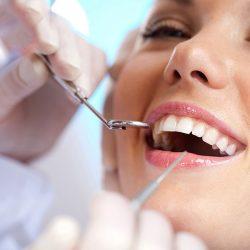 از بین بردن جرم دندان در خانه با روش های طبیعی
