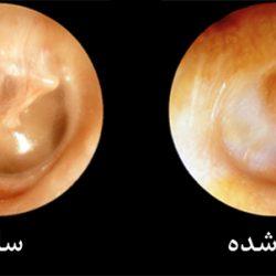 پاره شدن پرده گوش چه عللی دارد؟