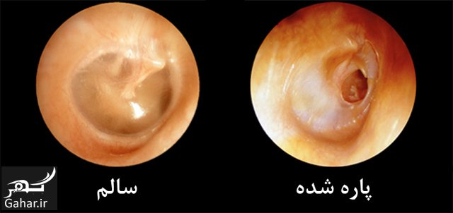 1 پاره شدن پرده گوش چه عللی دارد؟