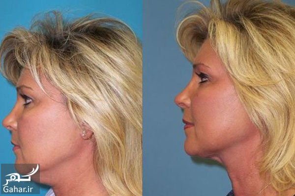 Exercise proper double chin removal معرفی بهترین ورزش برای رفع غبغب