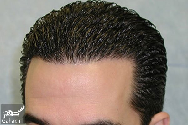 mataleb www.gahar .ir 20.06.97 4 معرفی بهترین روش کاشت مو
