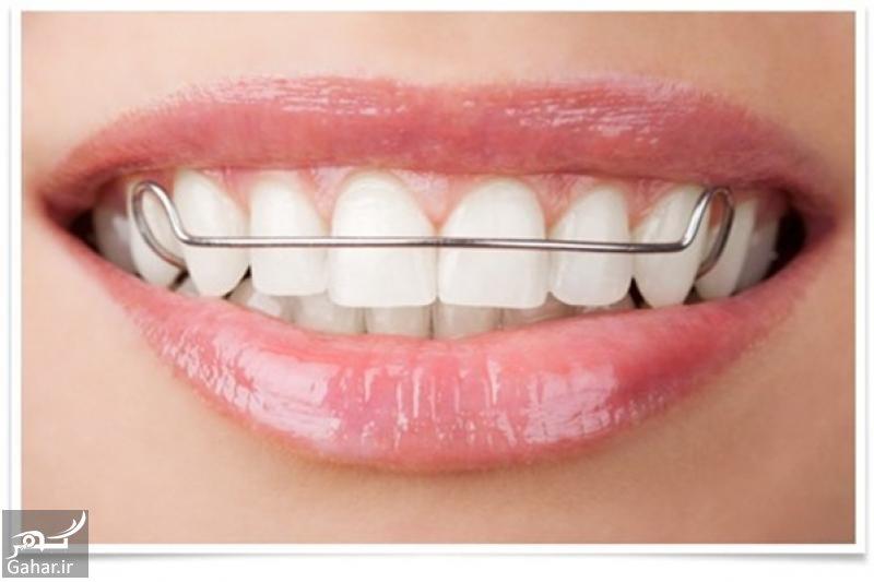 tnews 1445950722 5183 اگر قصد انجام ارتودنسى برای دندان هاى نامرتب تان دارید بخوانید