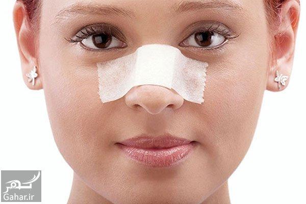 جراحی بینی خوب است یا بد؟!, جدید 99 -گهر