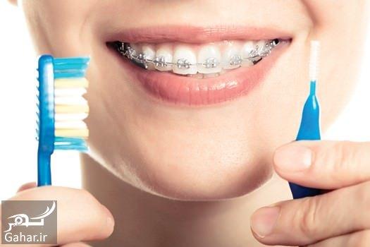 mataleb www.gahar .ir 08.10.97 4 نکات مهم بهداشت دهان و دندان در زمان ارتودنسی