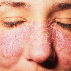 علائم بیماری لوپوس