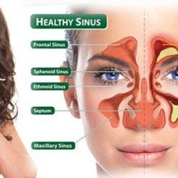 درمان سینوزیت چرکی