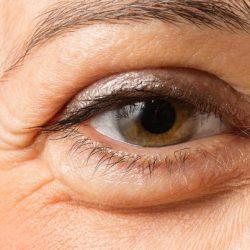 درمان پف بالای چشم