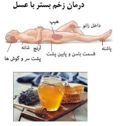 درمان زخم بستر در سالمندان با عسل و طب سنتی
