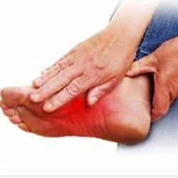 درمان داغی کف پا در تابستان و دیگر فصل ها