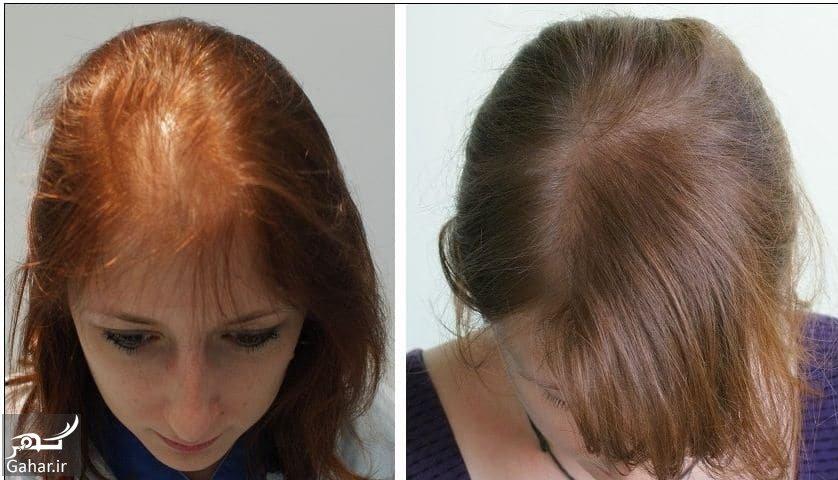 www.gahar .ir 04.04.98 8 کاشت مو با لیزر چگونه انجام می شود؟