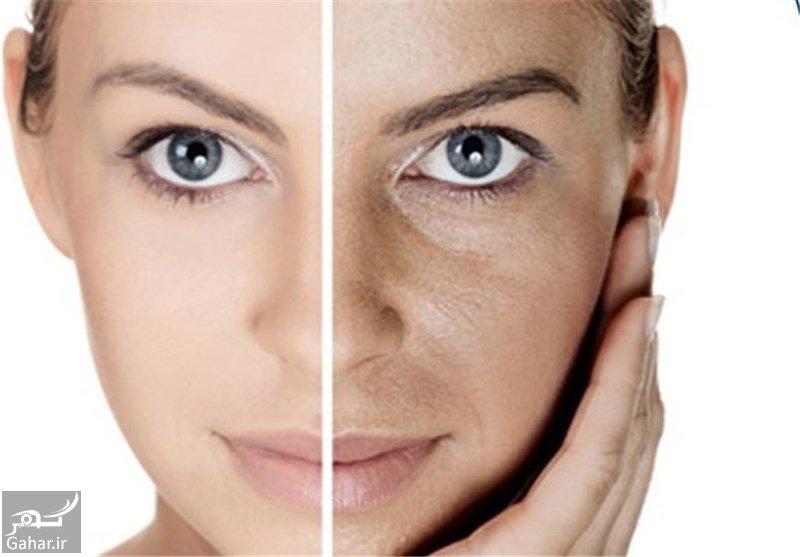 روش های ساده برای جوانسازی پوست بدون بوتاکس, جدید 1400 -گهر
