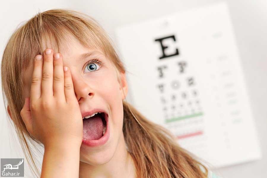 علل و علائم و درمان تنبلی چشم کودکان, جدید 1400 -گهر