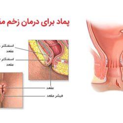 درمان زخم مقعدی