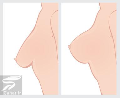 آموزش روش سفت شدن سینه ها در خانه, جدید 1400 -گهر