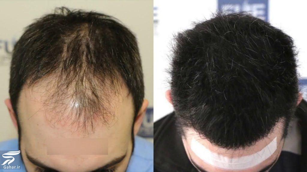 کاشت مو بدون جراحی امکان دارد؟, جدید 1400 -گهر