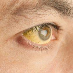 علت زردی چشم ها چیست؟