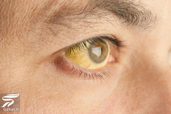 علت زردی چشم ها چیست؟, جدید 1400 -گهر