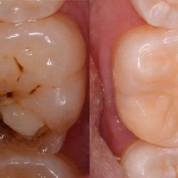 علل کرم خوردگی دندان و راه های درمان آن