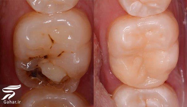 dandan علل کرم خوردگی دندان و راه های درمان آن