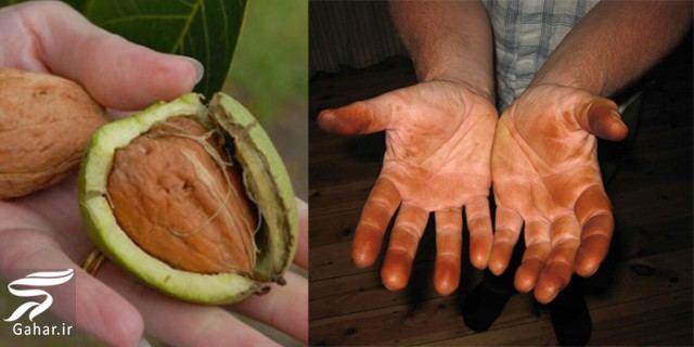 gerdo روش پاک كردن رنگ پوست گردو از دست