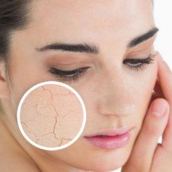 نکات آرایشی برای پوست های خشک