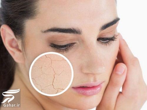 poost نکات آرایشی برای پوست های خشک