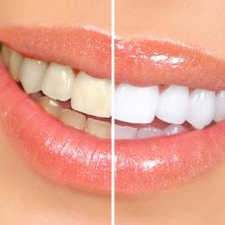 ونیر دندان چیست؟