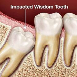کشیدن دندان عقل در سال 98