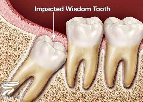 wisdom tooth هزینه کشیدن دندان عقل در سال 98