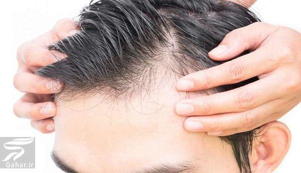 www.gahar .ir 03.07.97 6 روش های موثر برای رشد دوباره موهای ریخته شده