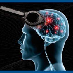 تحریک مغناطیسی مغز