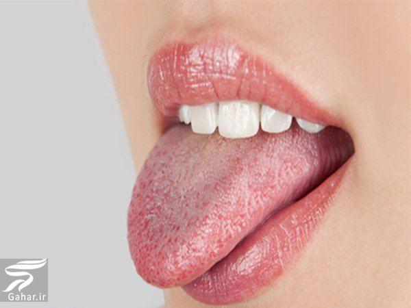 zaban راه های درمان سوختگی زبان