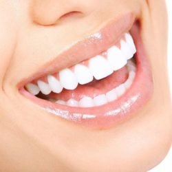 سفید کردن دندان ها با سرکه سیب