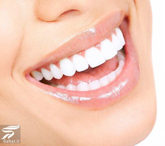 1244 سفید کردن دندان ها با سرکه سیب