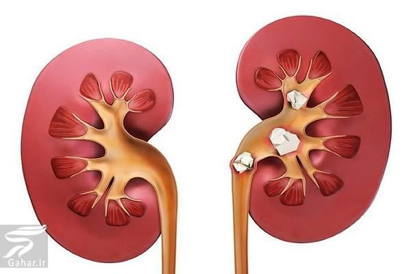 kidney stone روشهای رژیمی و غذایی برای جلوگیری از سنگ کلیه