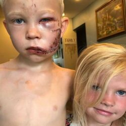 ماجرای دفاع پسر بچه آمریکایی از خواهرش