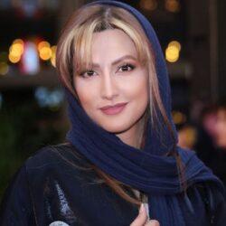 تغییر چهره سمیرا حسینی بعد از عمل بینی / تصاویر
