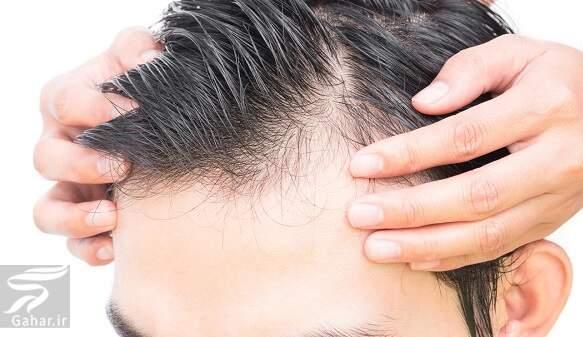 داروهایی که باعث ریزش مو می شوند, جدید 1400 -گهر