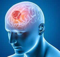 بررسی علائم و درمان بیماری های رایج مغزی