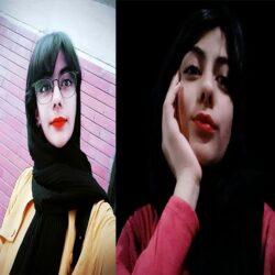 مرگ تلخ مجری جوان به دلیل جوش صورت + فیلم, جدید 1400 -گهر