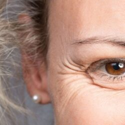 ۹ درمان خانگی برای رفع خطوط پنجه کلاغی, جدید 99 -گهر
